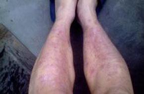 外阴银屑病术后多久可以洗澡